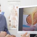 Prostate Defense Review: Should I get it?