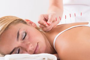 acupuncture to relax and relieve stress